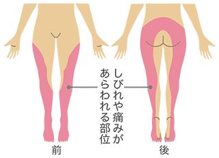 坐骨神経痛の範囲